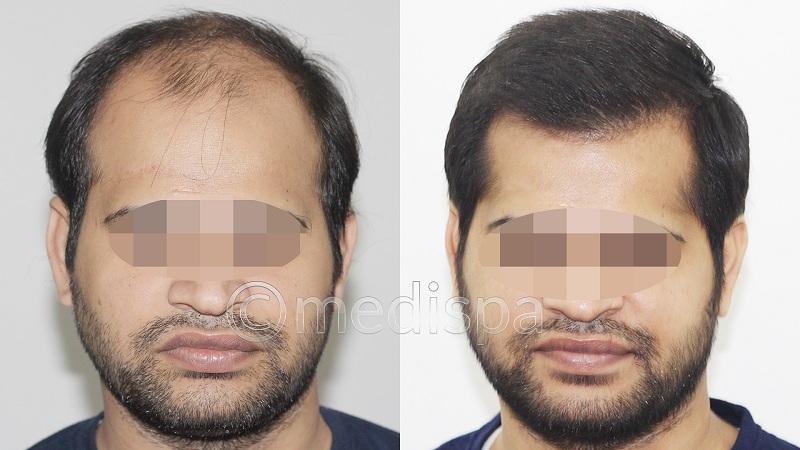 best hair relocation in Delhi.